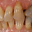 Implant uncoverage in functional areas - basic considerations