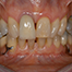Objectives of basic periodontal therapy