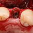 Implants in the partially edentulous anterior region