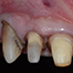 Finding the ideal implant position