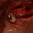 Post-operative complications