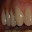 Choice of type of reconstruction in esthetic and non-esthetic areas