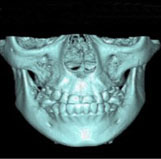 Essentials of 3D radiology