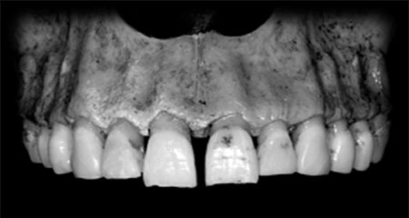 Ridge alterations after tooth extraction