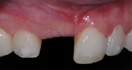 Prosthetics: Single crowns