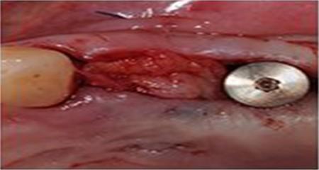 Post-operative soft tissue management