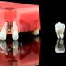 img-prosthodontics.png